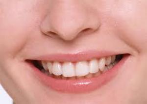 Методики отбеливания зубов: какие предпочтительнее